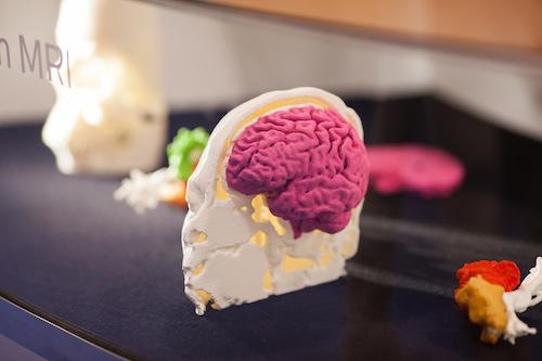 Brein 3D Print